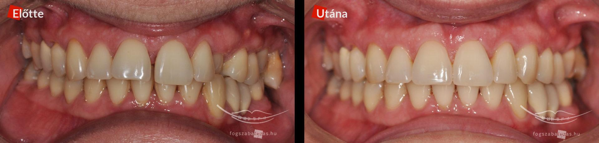 Fogágybetegség következtében elvándorolt fogak. 40 éves hölgy, rögzített készülékkel 1 éves kezelés eredménye.