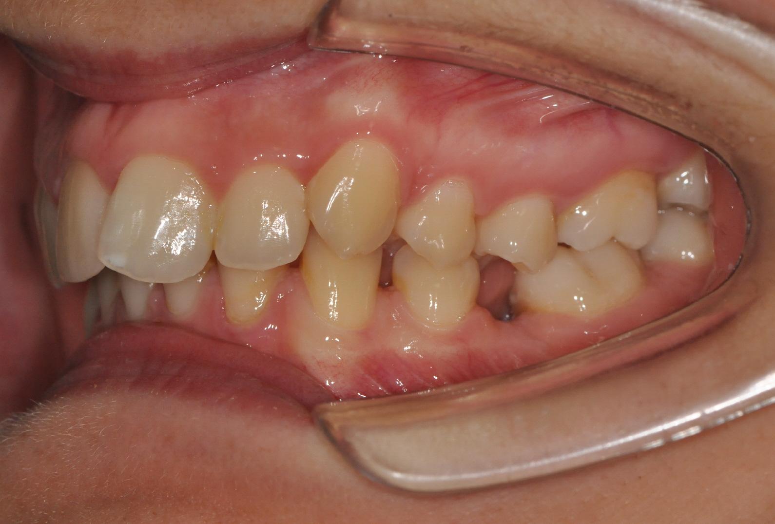 Foghiány következtében a szomszédos fogak egymásfelé dőlnek