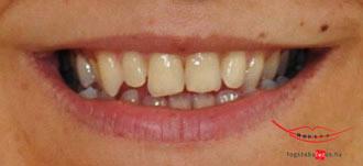 Digitális mosolytervezés a Dr. Kocsis Fogszabályzó Centrumban