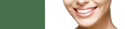 Szimmetrikus mosoly